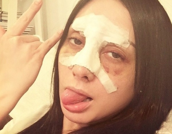 """Ex-BBB Francine Piaia sofre acidente de carro: """"Quebrei o nariz"""""""