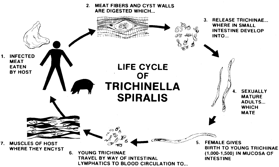 trichinosis treatment