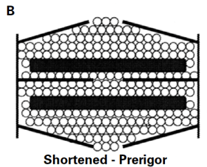 Figure B demonstrates water residing in shortened or contracting sarcomeres in pre-rigor or living muscle. Because no permanent cross-bridges have formed, the sarcomeres can expand laterally; therefore, water can remain in this structure even though the sarcomere has shortened.