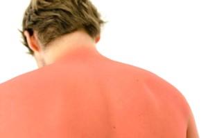 como-tratar-una-quemadura-solar
