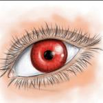Porque Tengo Dolor de Cabeza y Ojos Rojos