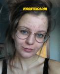 Porque Tengo Cicatrices De Acné Y Como Quitarlas