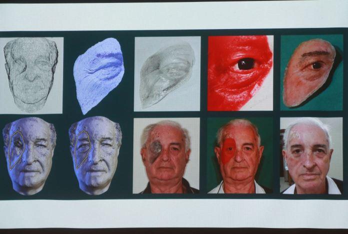 Resultado de imagen para Cirujano peruano propone programa de rehabilitación maxilofacial