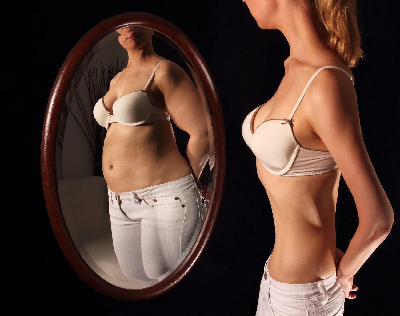 Resultado de imagem para anorexia