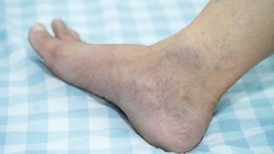 Pronto Socorro para Queimaduras - O que são úlceras varicosas?