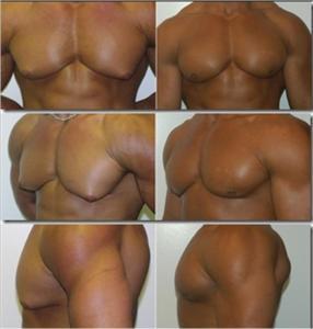 cirurgia plastica ginecomastia antes e depois