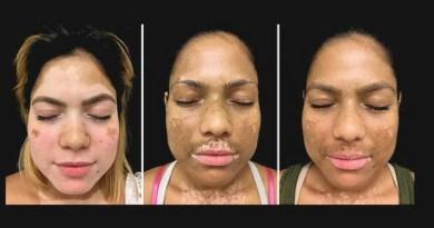 Terapia inovadora devolve a cor da pele para quem tem vitiligo
