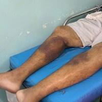 Surto de doença desconhecida se alastra entre presos em RR e 24 são internados, diz OAB