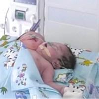 Bebê nasce com duas cabeças e mãe é obrigada pelo sogro a abandoná-lo