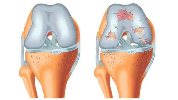 Ilustração de uma cartilagem de joelho normal e outra com artrose lado a lado.