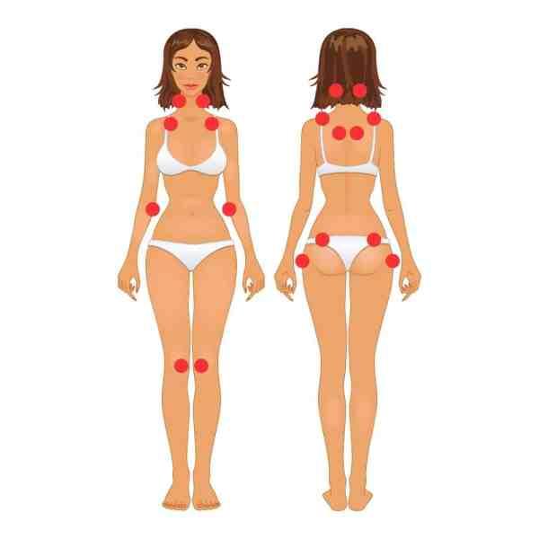 Pontos de dor mais frequentes na fibromialgia.