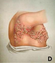 Ilustração de um tórax de perfil com feridas de herpes-zóster da metade das costas até metade do peito, passando por baixo do braço.