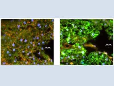 Imagem de microscópio comparando aedes aegypti comvírus da dengue e mosquito com Wolbachia, sem o vírus.