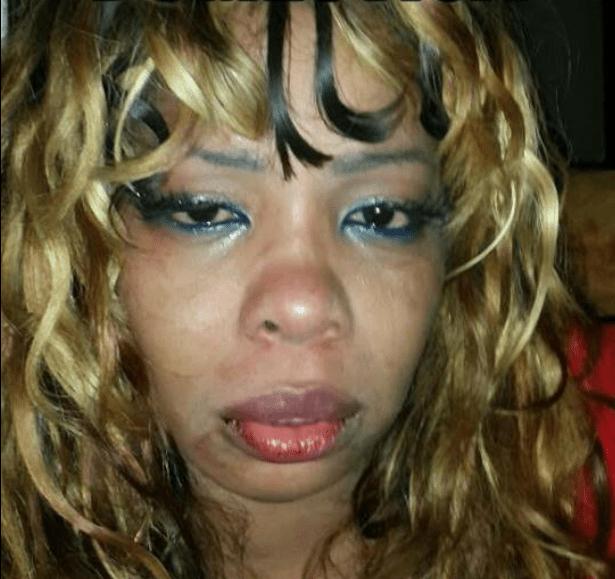 Cantora moçambicana Zav espancada pelo namorado
