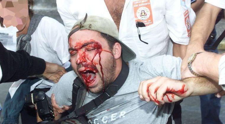 STF manda estado de SP indenizar fotógrafo baleado pela PM