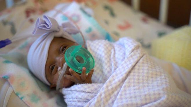 Menor bebê do mundo' a sobreviver deixa hospital e vai para casa nos EUA