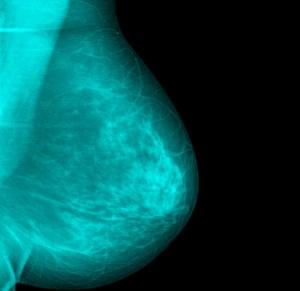 mamografia digital