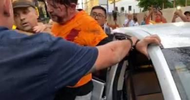 Cid Gomes deixa a UTI e é transferido para a enfermaria