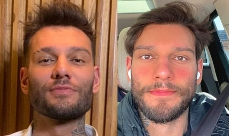 Lucas Lucco faz reversão da harmonização facial e mostra o resultado – Jovem Pan