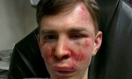 Disabled man, 25, left with BOOT PRINTS on his face after being savagely attacked by a gang as he walked his dog