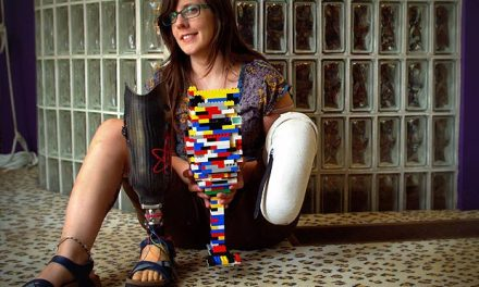 Amputee makes prosthetic leg entirely out of LEGO