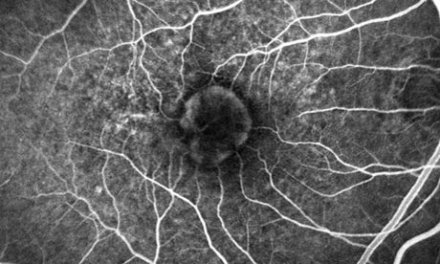 NHS could save £84m using cheaper drug to prevent blindness, trial finds