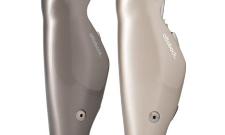 NHS funding for advanced prosthetic technology imminent