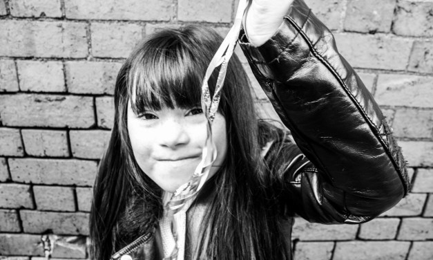 Models with disabilities needed for photoshoots