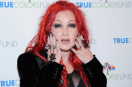Cyndi Lauper new song 'Hope' raises awareness about Psoriasis!