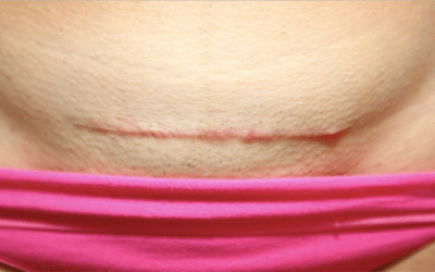 C-Section Scars – Problems and Solutions