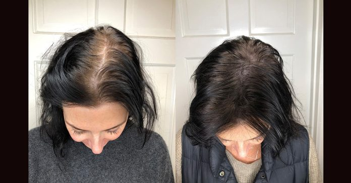 Scalp Micropigmentation: Benefits, Side Effects, Before & After Pics