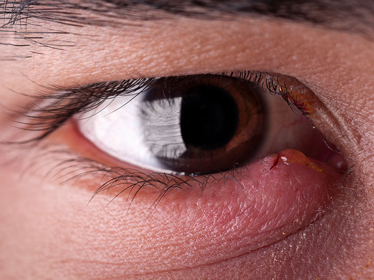 How Long Does A Stye Last Duration And