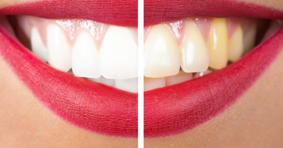 Telugu fashion and beauty tips-How to whiten stained teeth