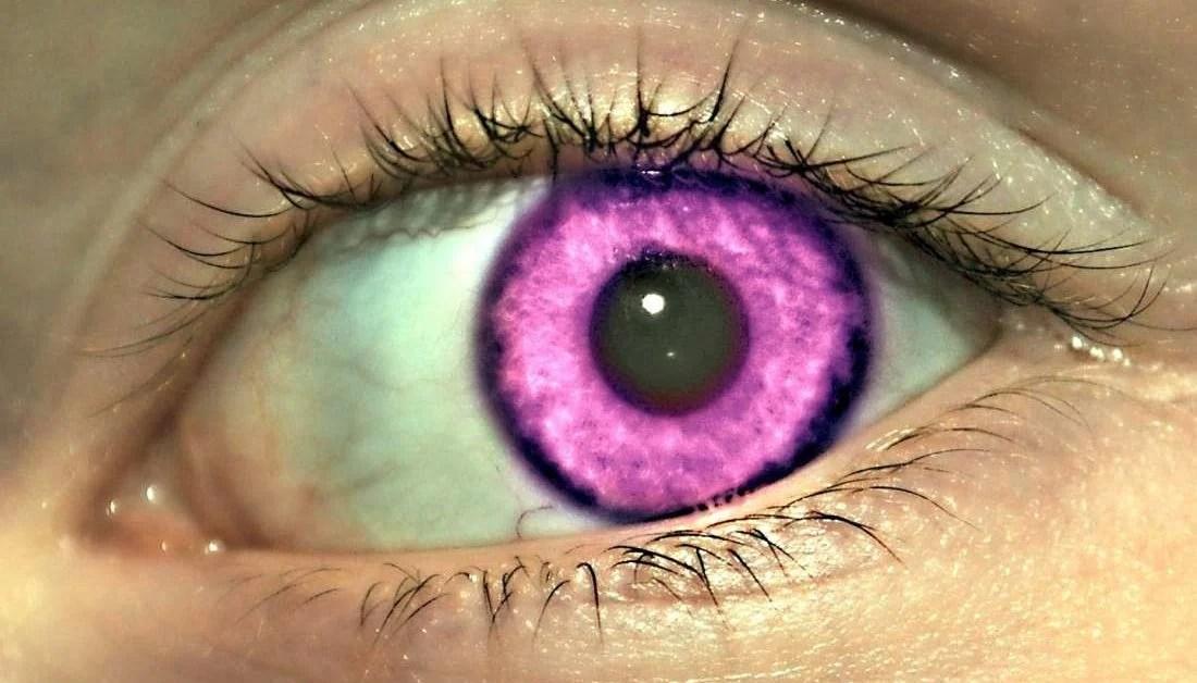 Natural Violet Eyes Mutation  Violet Eyes Mutation