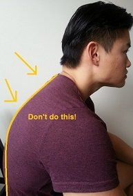 how to get rid of a dowager s hump