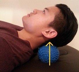 how to fix forward head posture nerd