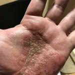 なぜか掌蹠膿疱症が治った!理由は?完治は難しいと言われた難病。