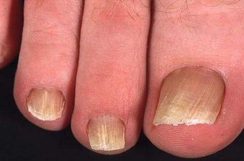 Лечение грибка ногтей ультрафиолетовой лампой