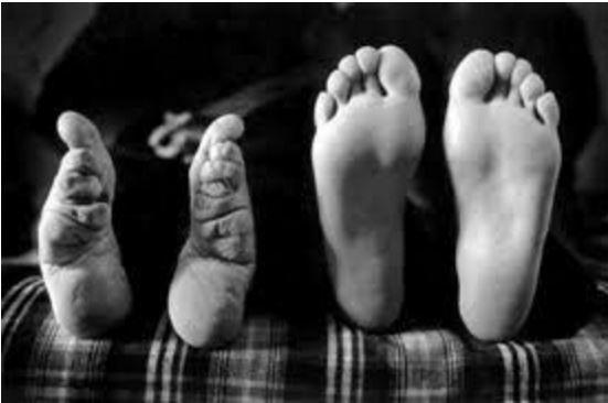 pieds de lys