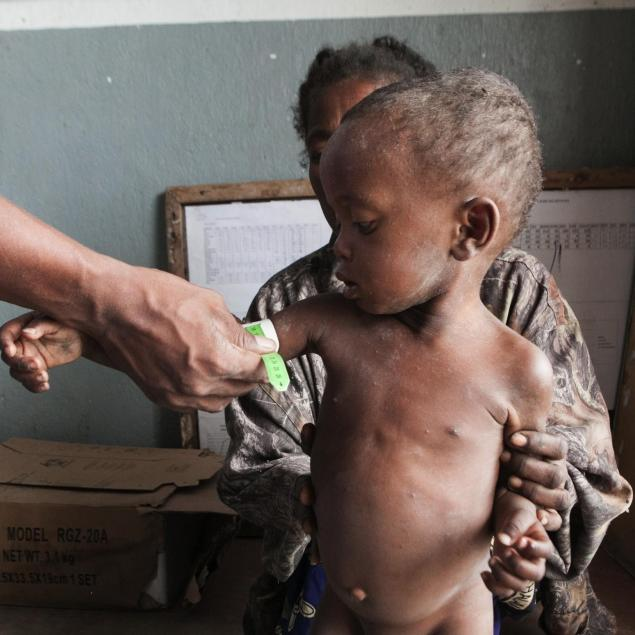 Le sud de Madagascar en proie à une crise alimentaire alarmante