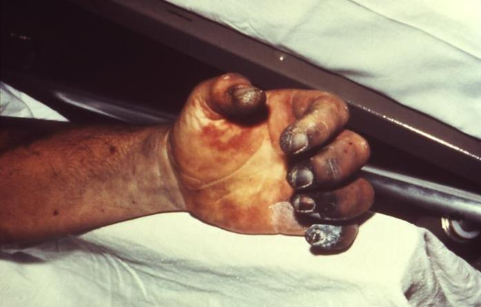 Hand_necrosis_caused_by_plague