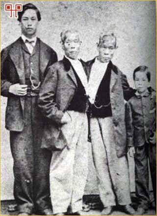 Chang i Eng sa sinovima Jamesom i Albertom snimljeni 1870. godine