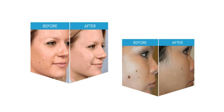 Derma-Correct-customer-reviews