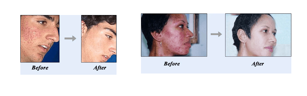 acne no more summary