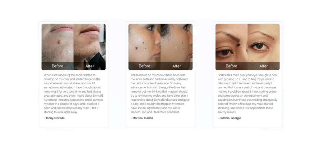 Skincell Advanced customer reviews