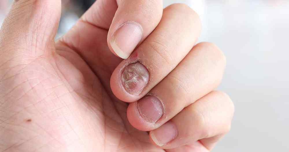 fungal infections in nail