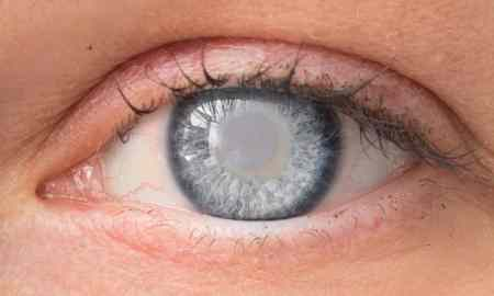 Cataract Diagnosis And Removal Is A Very Simple Choice