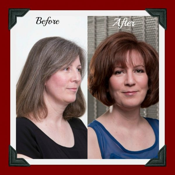 AGEBeautiful before and after photos