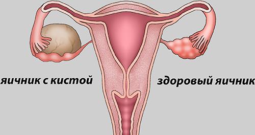 pierderea în greutate după îndepărtarea chisturilor dermide ovariene