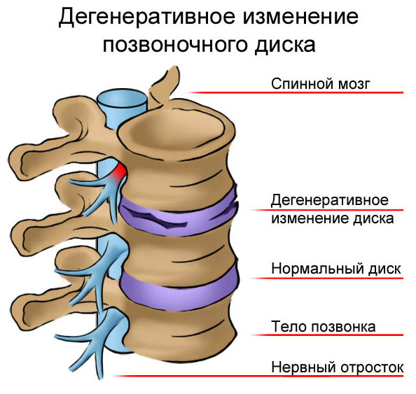 hipertenzija su krūties osteochondroze)